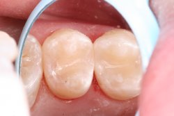 Tooth Colored Fillings